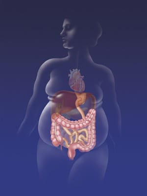 Gastric_Bypass-300w